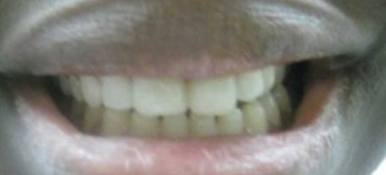 Beautifully repaired front teeth