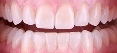 White healthy smile after