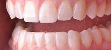 Healthy attractive smile after