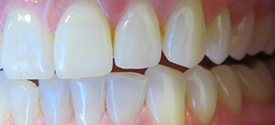 Brighter white staining on teeth before