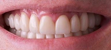 Healthy white teeth after