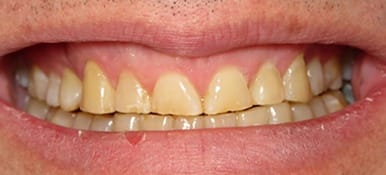 Yellow damaged teeth before