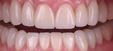 Healthy white properly aligned smile after
