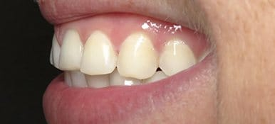 Decayed and yellowed teeth