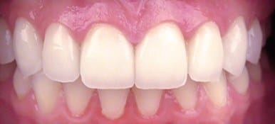 Seamlessly repaired chips in front teeth