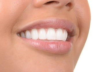 Closeup of healthy repaired smile