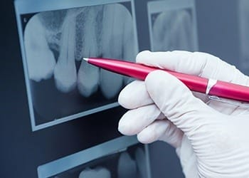Pen pointing to dental x-ray