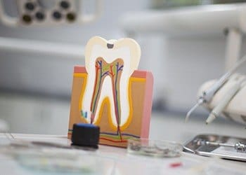 Model of tooth with root canal damage