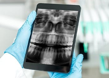 Digital x-rays on tablet computer